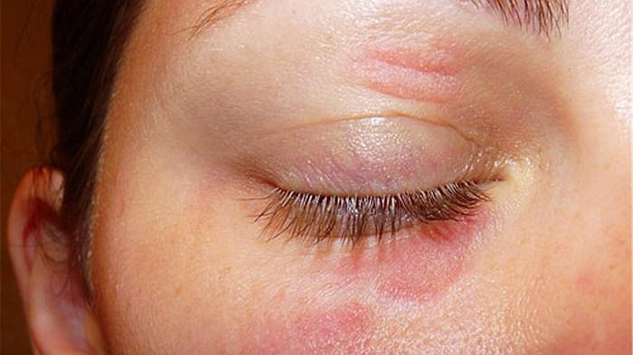 Le ragioni di cerchi cronici sotto occhi